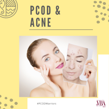 PCOD & ACNE: Lifestyle, Diet & Acne Treatments