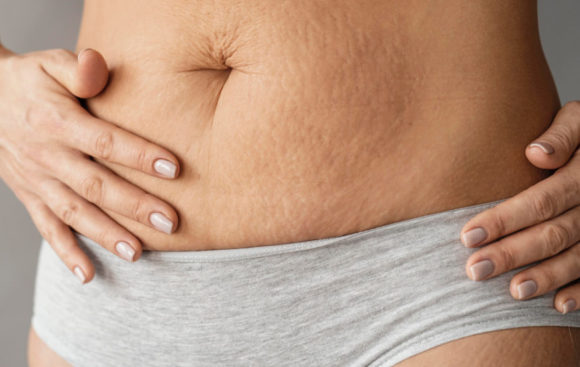 5 Facts You Need to Know About Stretch Marks
